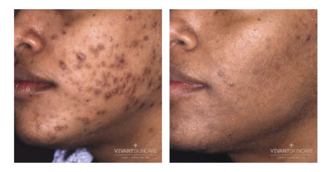 What should I expect from my acne treatment?
